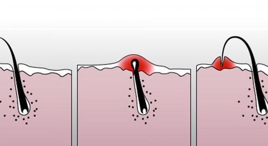Как избавиться от вросших волос? - BritvaMag